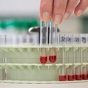 analize boala lyme